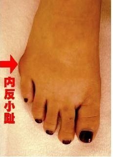 足 の 小指 違和感 足がだるい、重い、灼熱感その違和感はあの病気の初期症状かも?‐ILA...