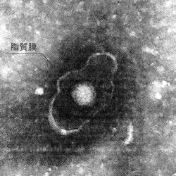 エンベローブを持つウイルス